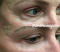 Botox and Dermal Filler Draw!