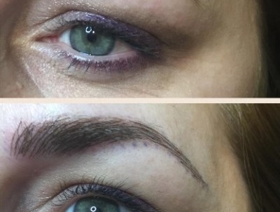 Before-and-After-Microblading-2