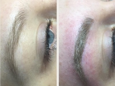 Before-and-after-Microblading-5